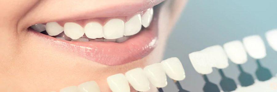 Albirea dintiilor (albirea dentara)