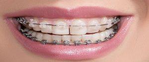 aparatul ortodontic dentar