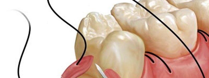 Chirurgie orala dentara