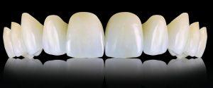 proteza dentara zrieconiu