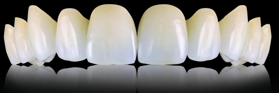 Lucrari protetice dentare din zirconiu