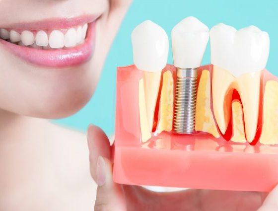 Implantologie – Implant Dentar