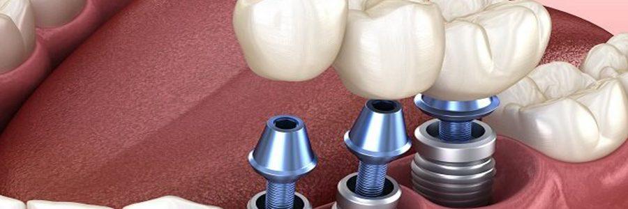 Implantul dentar.Indicatii si contraindicatii