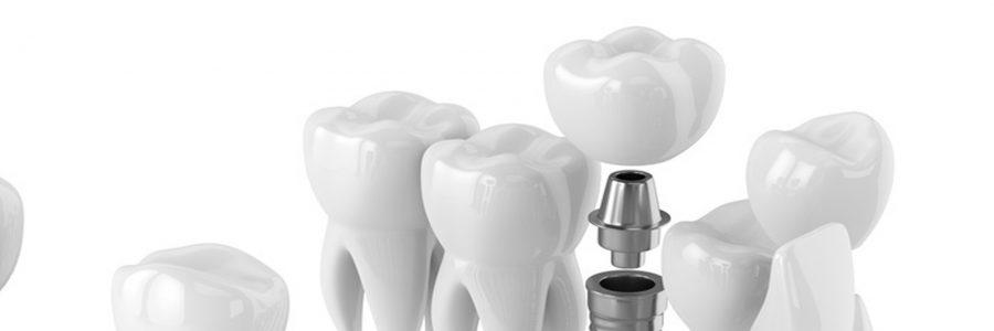 Implantul dentar. Sfaturi si indicatii postoperatorii
