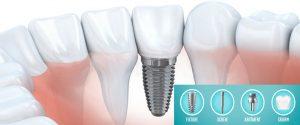 Etapele implantului dentar