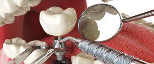 Instalare implant dentar