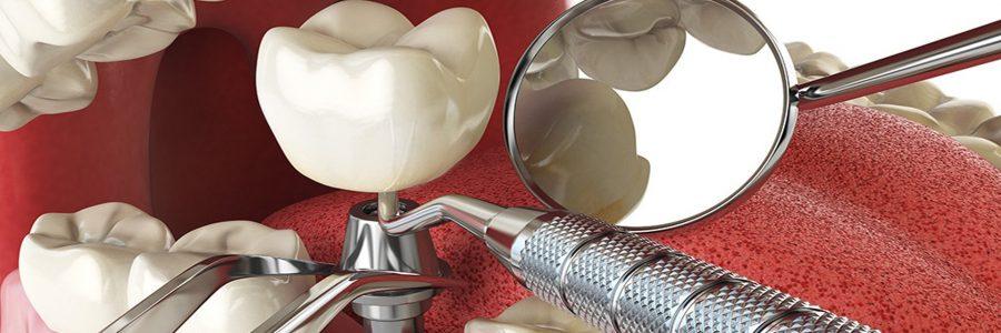 Implantul dentar la pacientul cu diabet
