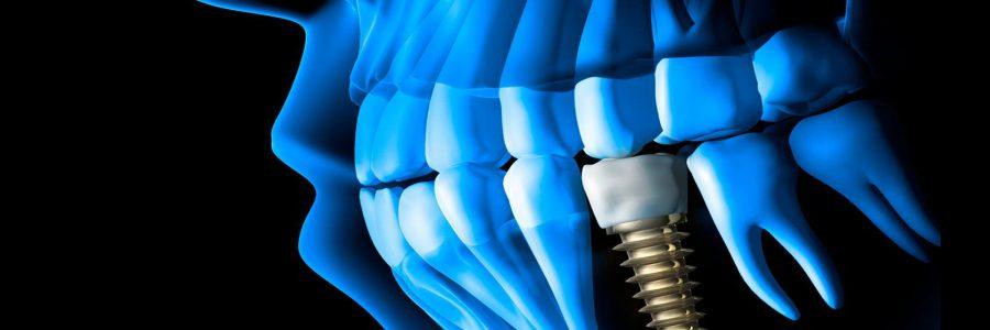 Implantul dentar la pacientul cu parodontoza